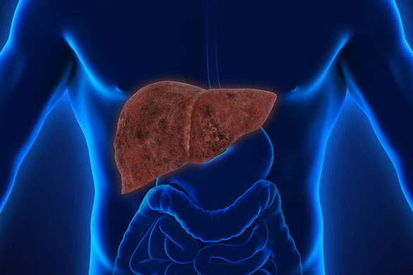 Fatty Liver Disease: Diagnosis and Its Symptoms